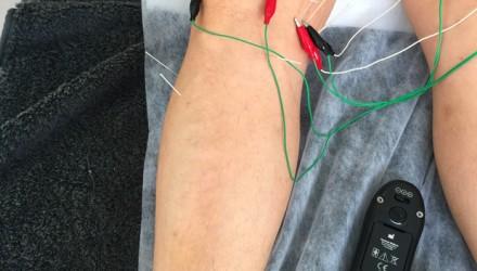 MPS Terapia Neuro-Mecânica